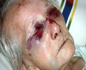 elder violence3